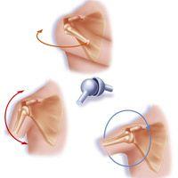 Des prothèses de l'épaule de plus en plus efficaces