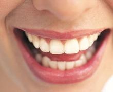 Comment garder mes dents bien blanches ?