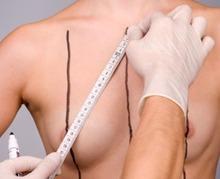 Les patientes trop peu informées des risques d'une augmentation mammaire