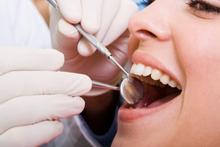 Le coût des soins dentaires reste un point sensible