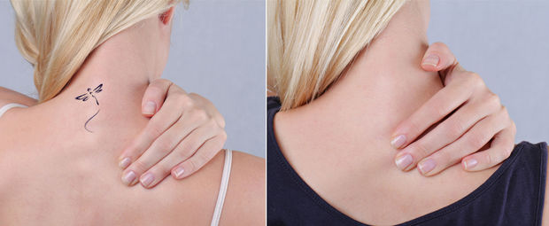 Effacer Un Tatouage Sans Cicatrice Sante Plusmagazine